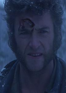 Wolverine_Healing